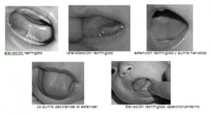 frenillo  corto de la lengua