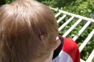 mi hijo tiene una herida
